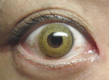 How To Eliminate The Risk Associated With Wearing Colored Contact Lenses