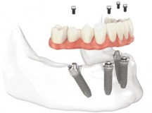 Should I Repair or Replace My Dentures? Key Points for Denture Wearers to Consider
