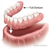 Denture Diagram