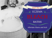 5 Ways To Avoid Itching Your Eczema