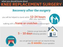 Recovery & Rehabilitation Following Knee Replacement Surgery