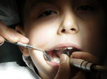 Wondering how to deal with your kid's dental problems?